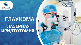 видео Лазерная иридэктомия и трабекулопластика при глаукоме глаза