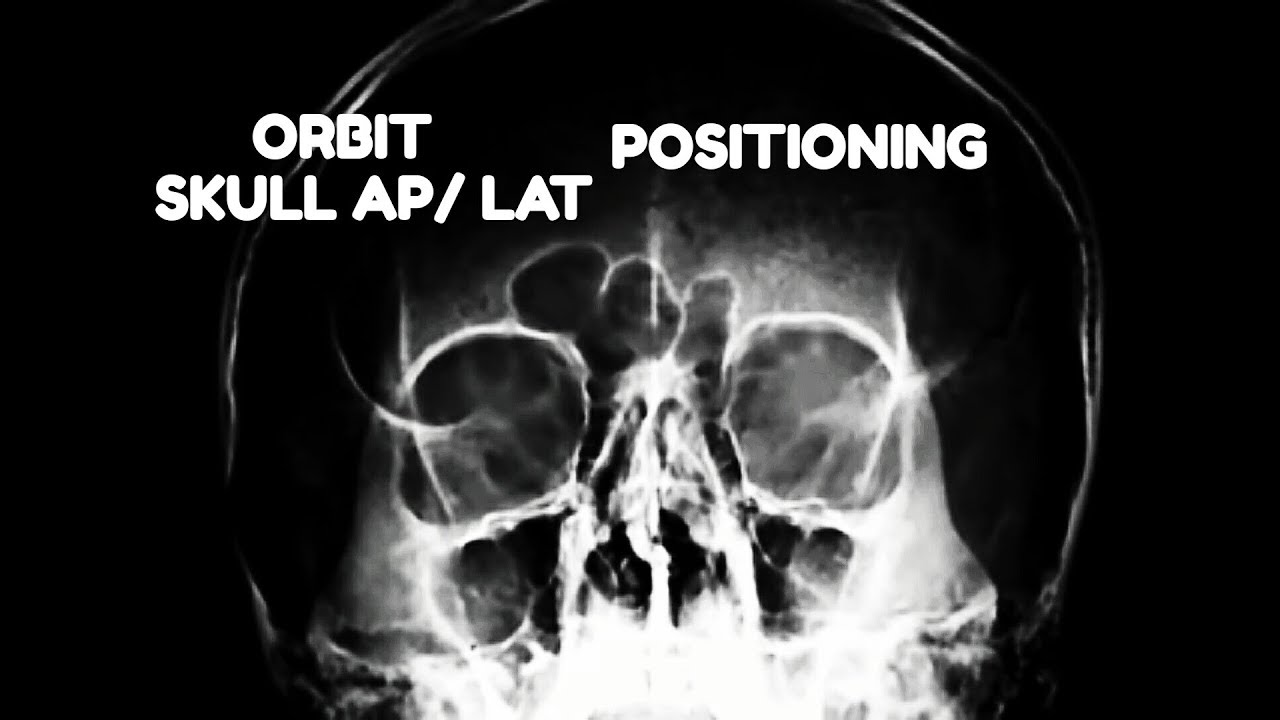 ORBIT AP/LAT-OBL VIEWS, ANATOMY AND PHYSIOLOGY PART - 20 - YouTube