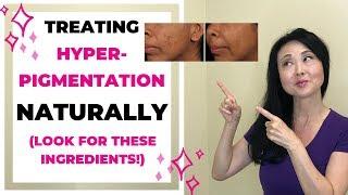 Treat Hyperpigmentation Naturally