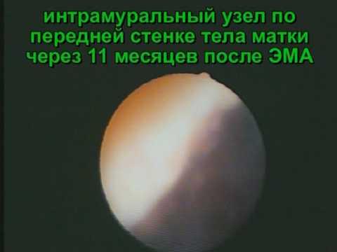 Эмболизация маточных артерий. Миома через год