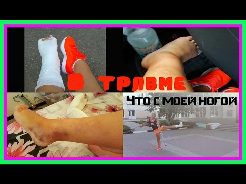видео: Что у меня за травма?Неужели так серьезно?+ФОТО|1 ЧАСТЬ