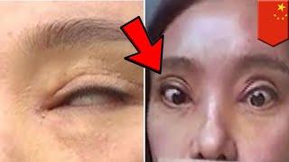 女子割雙眼皮失敗 竟無法闔眼