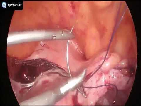 Vaginal paravaginal repair