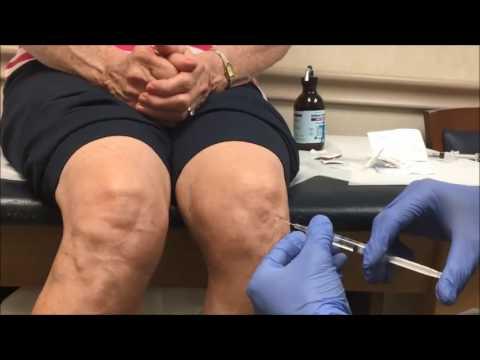 Viscosupplementation Knee Injection