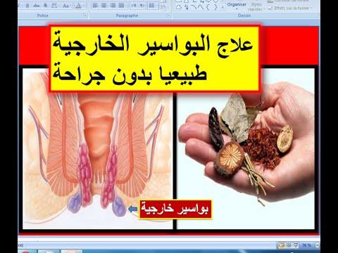 علاج البواسير الخارجية 14