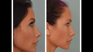 UPDATED: Rhinoplasty Advice From Patient: Nose Job Questions