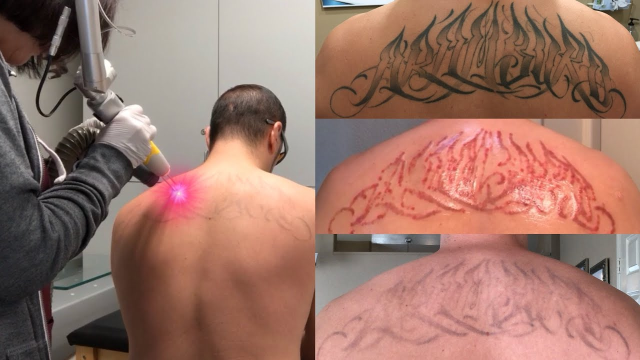 Laser tattoo removal at WA Ink by ...