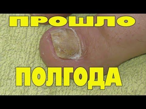 Грибок ногтя на ноге Отзывы для вас