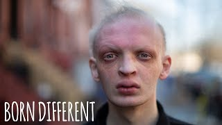 Modelling Helped Me Embrace My Rare Condition | BORN DIFFERENT