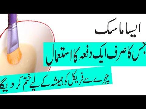 Freckles Tips in Urdu  Freckles Treatment at Home  