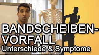 Bandscheibenvorfall - Unterschiede & Symptome
