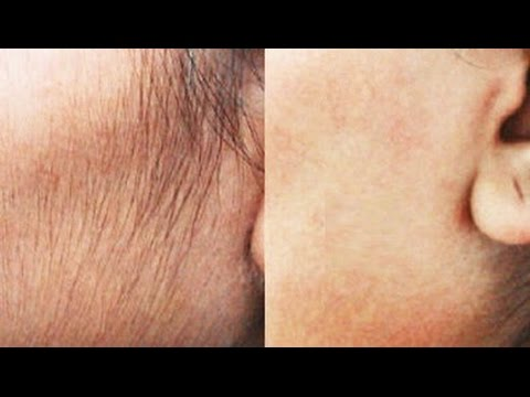 Facial hair removal homemade