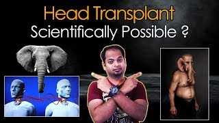 Scientifically possible to do Head Transplant? | Lord Ganesha head transplant | Mr.GK