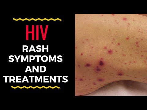 HIV Rash Symptoms and Treatments | BEAUTY TIPS