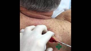 Removal of lipoma on the upper back