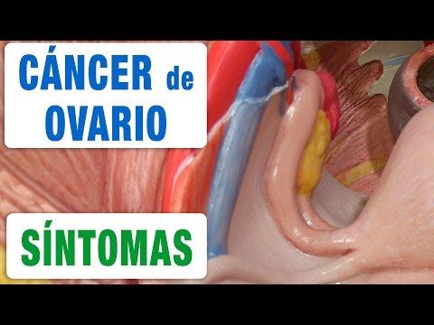Todos los Síntomas del Cáncer de Ovario