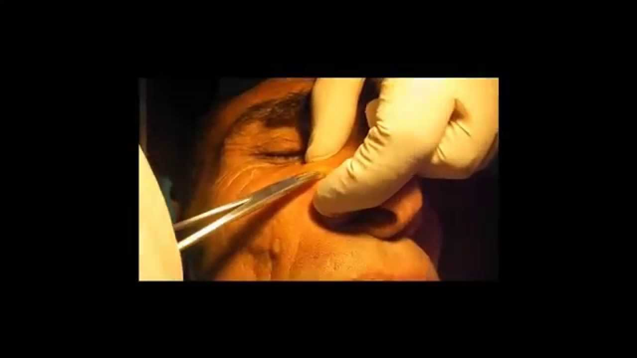 Sebaceous ( Epidermoid) Cyst Face. No Scar (HD) - YouTube Sebaceous Cyst Face