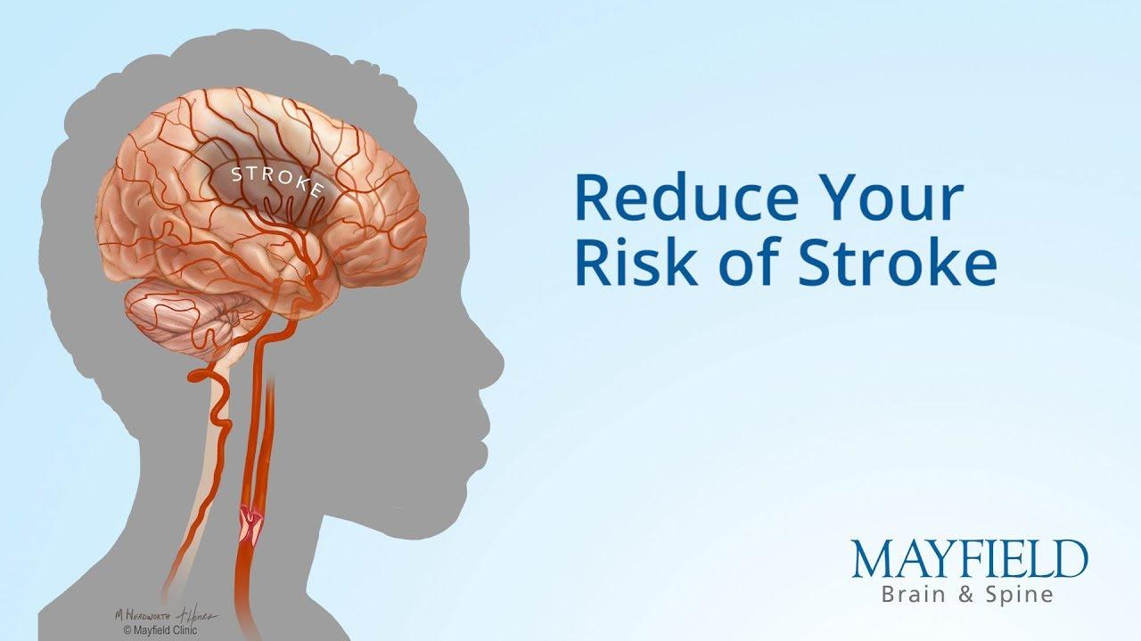 medium resolution of stroke brain diagram