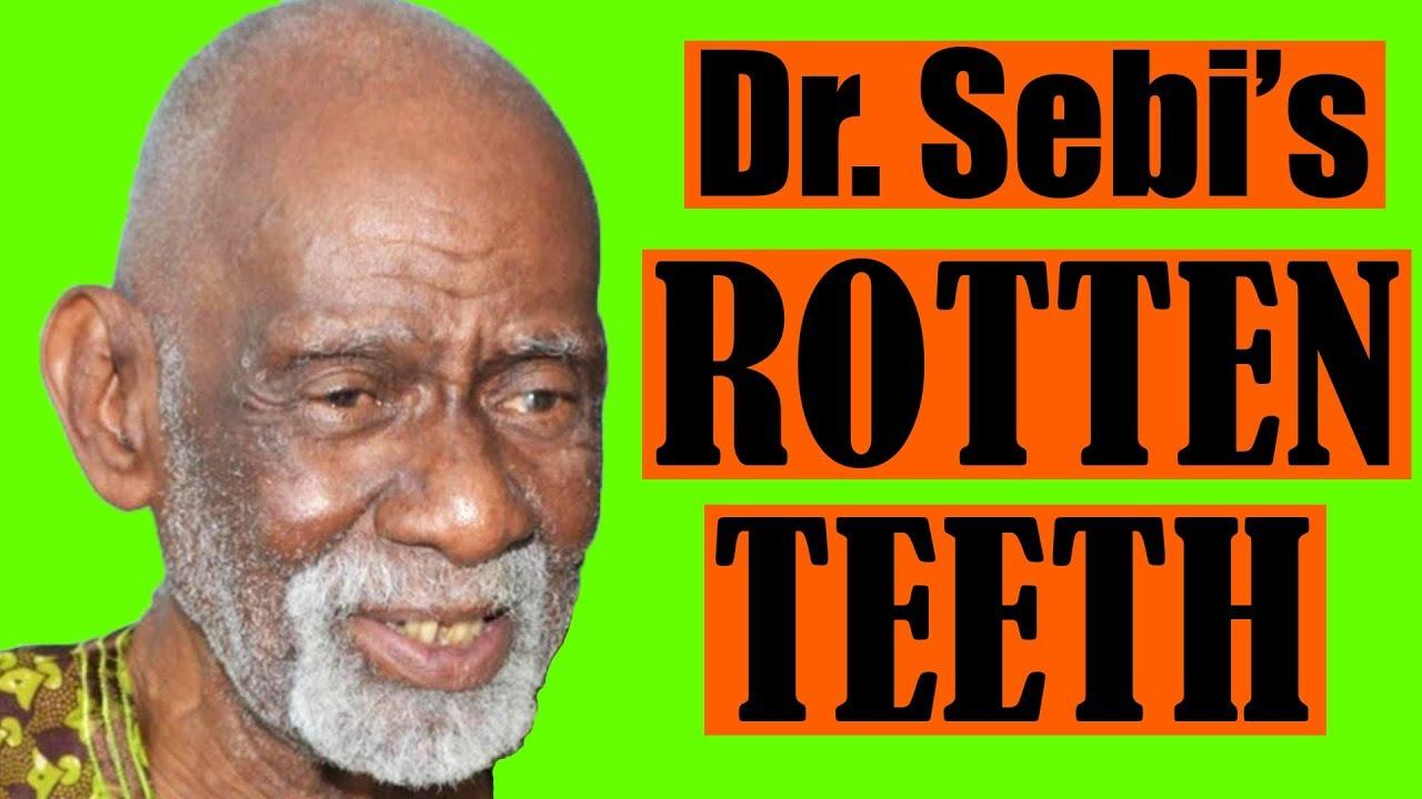 Dr  Sebi's Rotten Teeth