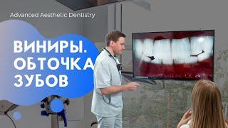Виниры на зубы / Установка / Цена/ Обточка зубов / Результат