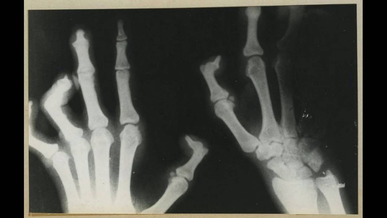 radiology image of lost limbs nowadays