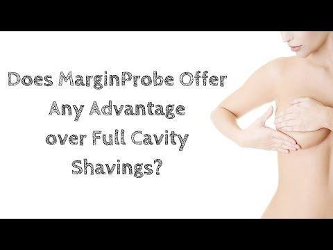 Does MarginProbe Offer Any Advantage Over Full Cavity Shavings?