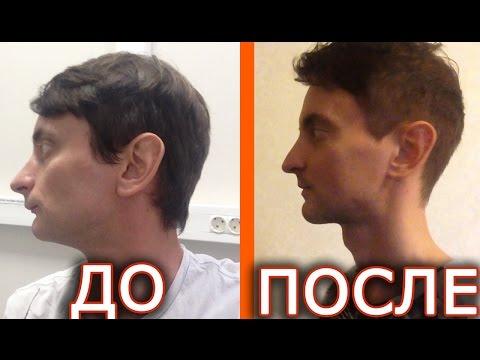 3 мес. после челюстно-лицевой операции + 10 лайфхаков для тех, кто решился