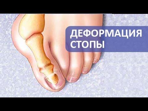 Вальгусная деформация стопы. Операция при вальгусной деформации стопы. Армен Петросян