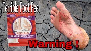 Warning ⚠️ Don't buy ! Foot Peel Gone Wrong
