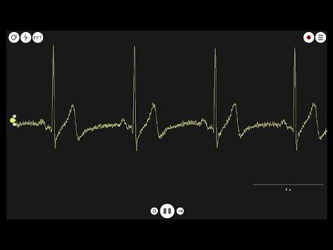 Recording EKG's Heart and Brain SpikerShield - Gen2.5