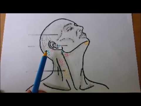 Ganglios en la nuca dolor de cabeza