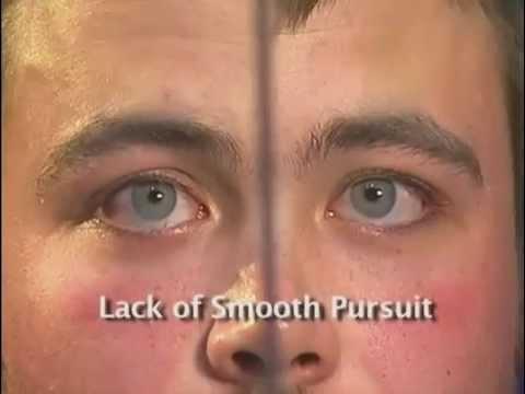 The Horizontal Gaze Nystagmus Test - the NHTSA horizontal gaze eye movement field sobriety test