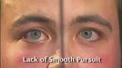 HGN Test | Horizontal gaze nystagmus | HGN | Nystagmus Test | Horizontal gaze nystagmus test