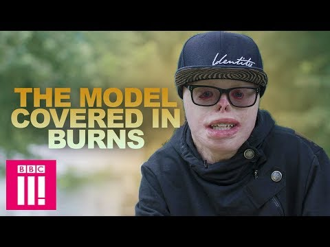 The Model Covered In Burns | Living Differently