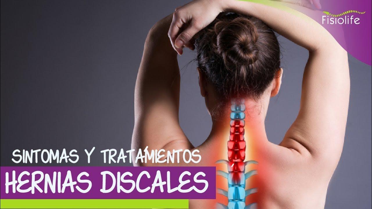 Sintomas y TRATAMIENTO Fisioteraputico de la HERNIA de DISCO