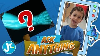 What Happens After I Break My Arm? - Ask Anything