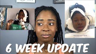 6 Week Post-op Jaw Surgery Update | Janai Imani