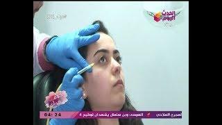 بالصوت والصورة| أحدث طرق علاج الهالات السوداء مع د. محمد السملاوي ود. هبة العوضي