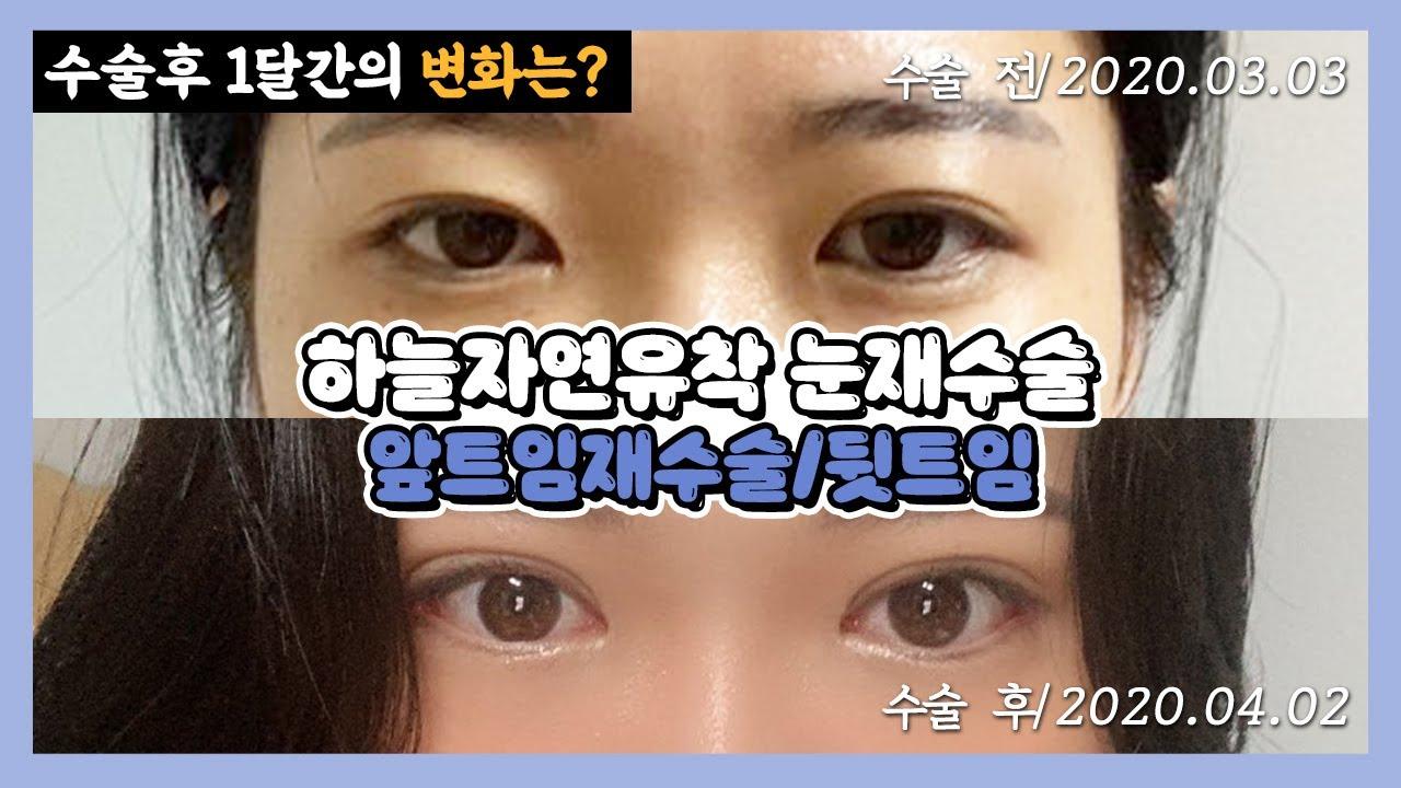 [부산쌍수재수술] 첫 수술후 졸려보이던 눈매가 또렷해보일 수 있을까? 하늘자연유착 눈재수술+앞트임재수술+뒷트임 1개월간의 변화과정