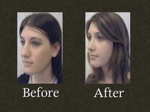 rhinoplasty-nose-surgery-gallery-maryland-dr.-mark-richards