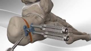 Flatfoot Repair with Arthrex® Calcaneus Step Plate