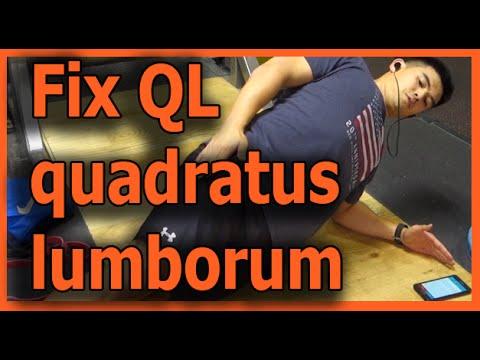 Fix my QL how to even it out Quadratus lumborum