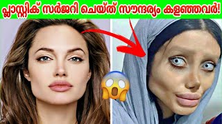 പ്ലാസ്റ്റിക് സർജറിചെയ്ത് സൗന്ദര്യം കളഞ്ഞവർ! | Malayalam | Razin Visuals | Malayali Cafe|Facts Mojo