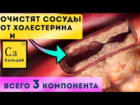 Эта тройка очистит сосуды от холестерина и кальция!