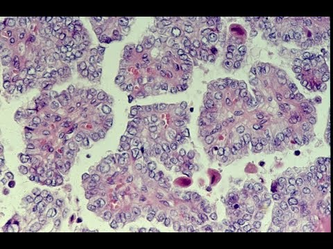 Thyroid Neoplasms - Pathology mini tutorial