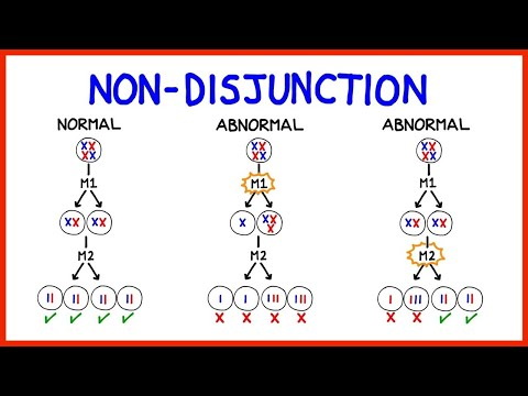 Chromosomal abnormalities – buzzpls.Com