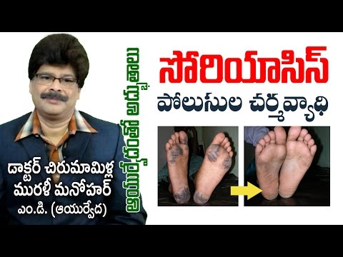 Psoriasis   Complete Ayurvedic Treatment   Prof. Dr. Murali Manohar Chirumamilla, M.D. (Ayurveda)
