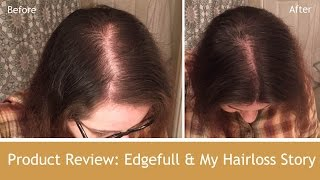 Product Review - Edgefull & My Hairloss Story