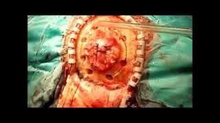 видео Нейрохирургия