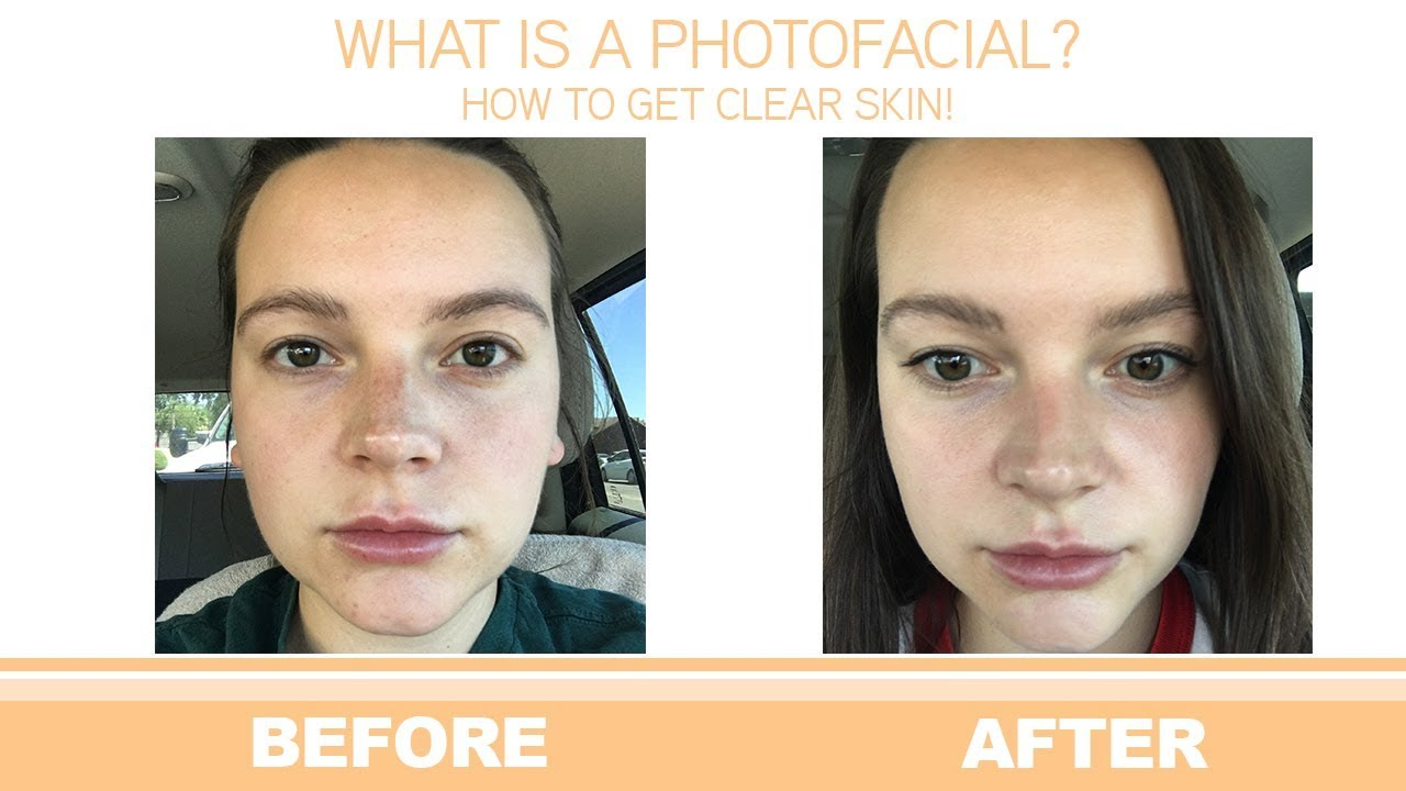 How To Get Clear Skin With a IPL Photofacial! - YouTube
